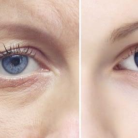 wrinkle skin